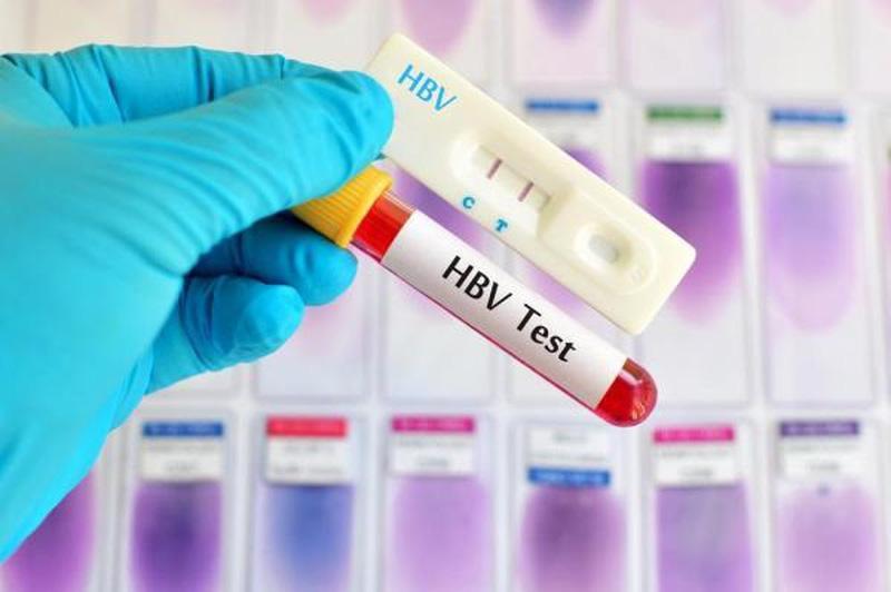 Làm gì khi kết quả xét nghiệm viêm gan B dương tính?